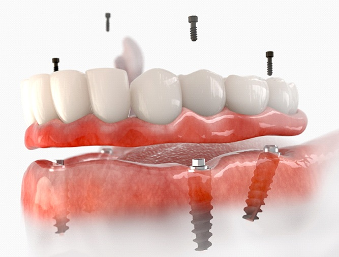 A digital image of an implant denture sitting on top of four dental implants on the lower arch